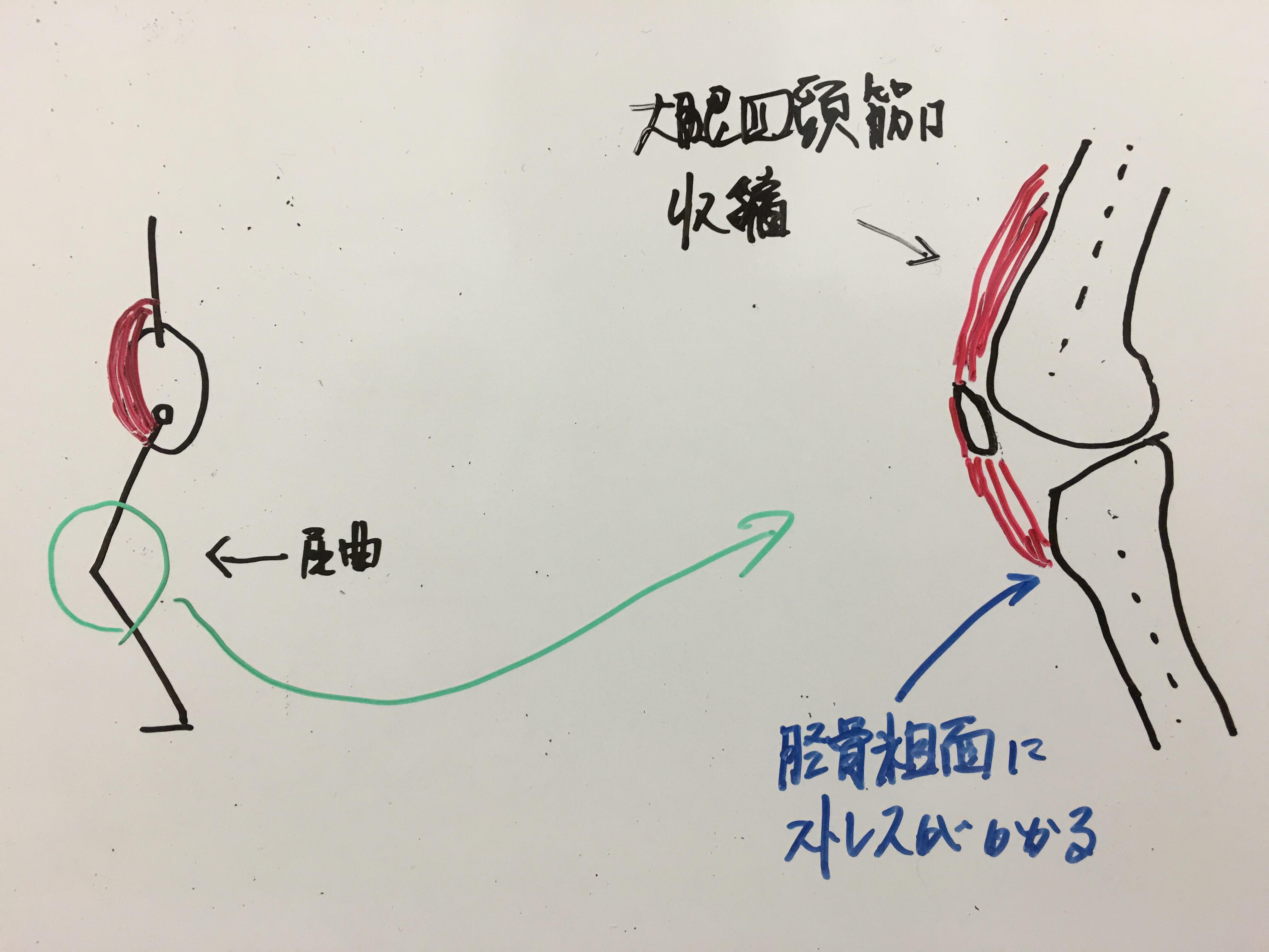 オスグッドシュラッター病(4)